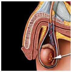 Resultado de imagen para extirpan testiculos